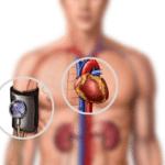 Современное медикаментозное лечение гипертонической болезни