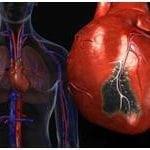 ИБС и атеросклеротический кардиосклероз код по МКБ 10: что это?