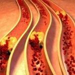 Средства для понижения холестерина в крови: лучшие и самые эффективные