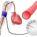 Почему утром повышается артериальное давление?