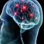Прогрессирующий атеросклероз сосудов головного мозга: прогноз жизни