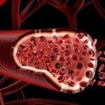 Лечение народными средствами атеросклероза аорты сердца