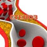 Что такое атеросклероз венечных сосудов сердца?