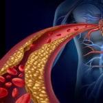 Атеросклероз сосудов нижних конечностей код по МКБ 10