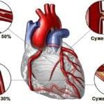 Атеросклеротическая болезнь сердца, атеросклероз аорты: что это такое?