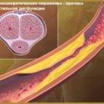 Атеросклероз сосудов и капилляров полового члена: симптомы и лечение