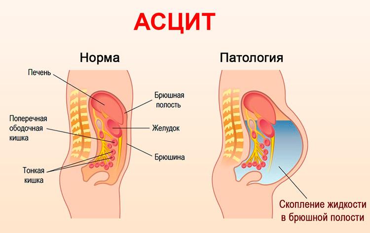 вот асцит при сердечной недостаточности картинка связи