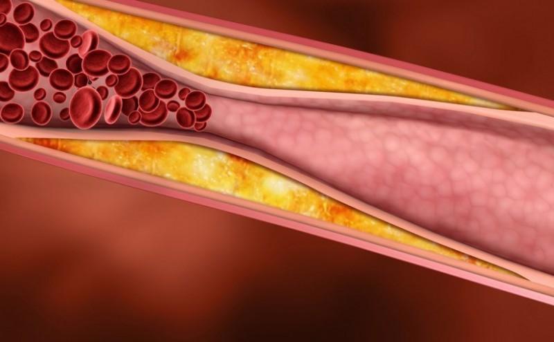 Как влияют креветки на содержание холестерина в крови