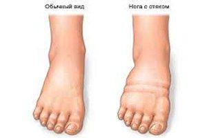 Начальная стадия гангрены ноги при сахарном диабете