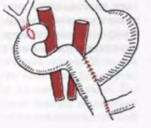 Лечение панкреатита с оперативным вмешательством