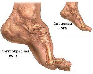 Вся информация про лечение полинейропатии нижних конечностей